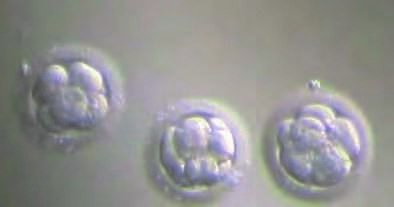 Fertilization and Embryo Culture