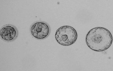 Assisted Hatching | PCRM Fertility Clinic Vancouver